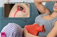 बीमारी ऐसी कि महिला रोती है 'खून के आंसू', पीरियड्स से...