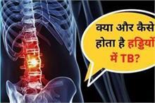 हड्डियों में भी घुस सकता है TB, समय रहते करें लक्षणों की...