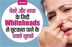 Home Remedies : चेहरे और नाक से Whiteheads हो जाएंगे हमेशा के लिए दूर