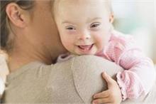 जन्मजात बीमारी है Down Syndrome, बच्चों में ऐसे पहचाने लक्षण
