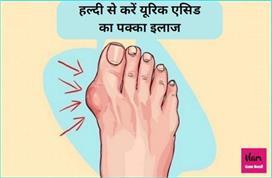 दवा नहीं, हल्दी से करें Uric Acid और जोड़ दर्द का इलाज