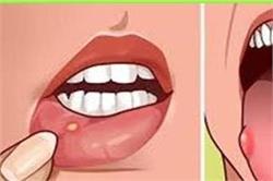 इन घरेलू उपाय से ठीक करे जीभ और मुंह के छाले