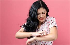 स्किन एलर्जी से राहत पाने के लिए ट्राई करें ये आसान उपाय