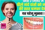 कितने भी पीले क्यों ना हो दांत, 2 मिनट में होंगे सफेद, उम्रभर नहीं...