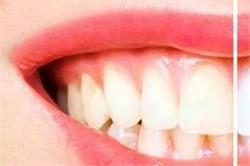 कमजोर और गंदे दांतों से हैं परेशान, रसाेई में छिपा है इसे चमकाने का नुस्खा