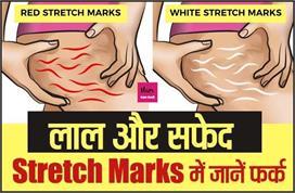 पहले जानिए लाल और सफेद Stretch Marks में फर्क, फिर करें सही...