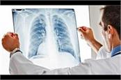 pollution and poor lifestyle increase risk of lung cancer rgcirc
