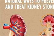 natural ways to prevent and treat kidney stones