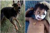 man eating dog innocent baby girl s mouth face stitched with 11 stitches