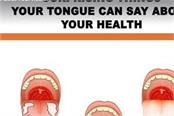 what your tongue can say about your health