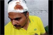 sub inspector injured