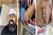kullu body builder vishwajeet bhanu condition serious