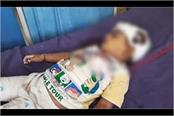 3 year old girl died due to faal from roof