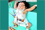 one day old girl dies in hospital