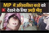 birth of undeveloped child in chhatarpur