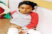 bones broken without injury of 10 year old prince