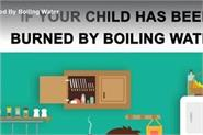 if your child has been burned by boiling water