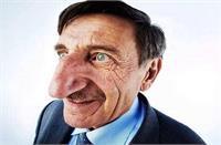 ये है दुनिया के सबसे बड़े नाक वाला शख्स, 71 की उम्र में भी लगातार बढ़ता जा रहा है साइज