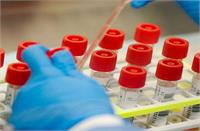 फतेहाबाद : कोरोना के बढ़ते मामलों को लेकर स्वास्थ्य विभाग ने बढ़ाई सैंपलिंग
