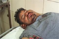 haryana kala kachha gang yamunanagar attack loot police