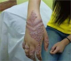 skin damage by henna