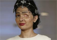 acid attack survivor reshma qureshi slays the new york fashion week runway