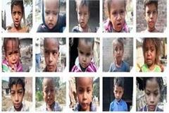 disease in khasra in up  40 children are sick but health department is careless