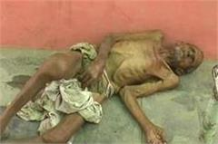 humanity shamed sick elderly lying in nude state for 2 days outside the hospital