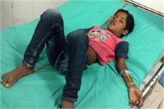 one chilled suffered with diphtheria in spite of vaccination