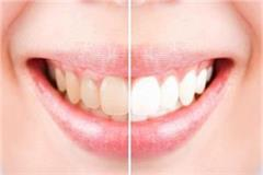 how to make teeth strong and clean naturally