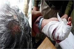bloody conflict again in abvp sfi 3 students injured