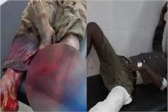 doctors carelessness kept between the legs of the patient his cut legs
