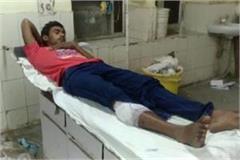 mukul kushwaha injured in encounter