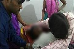 husband burnt wife alive for dowry