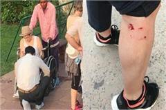 2 tourists injured in attack of monkeys inside taj mahal