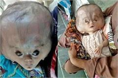 the head of this baby the victim of dangerous disease