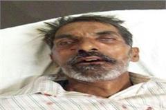 elderly death due to heat due to stairs