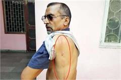 divyang brutally beaten by retired person of asp rank fir registered