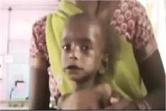 hunger is still a victim of silence mother and father s condition too serious