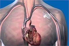 world s smallest pacemaker done implant