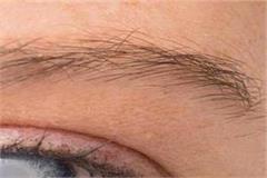 shimla race will no longer be run for treatment of white cataract