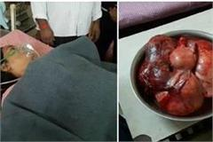 lord became a doctor 7 kg 150 g tumor removed from
