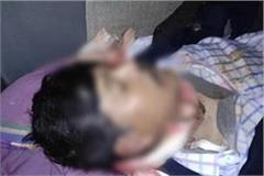 the bullet shot through the eye of bjp leader