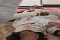 bloody game between two villages police administration