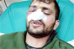 soldier devender kumar of ispur injured in pulwama military operation