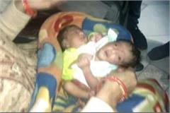 two headed baby born in panipat
