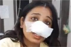 in bathinda the eaten wife nose