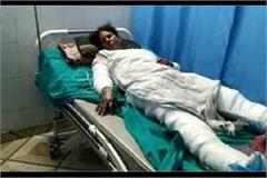 burnt woman bdc alive in aligarh