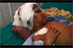 mathura dog attacked the boy badly injured