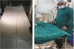 a live insect of 63 feet removed from the patient s intestine